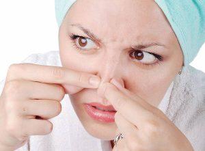 Seputar Jerawat di Hidung, Penyebab Hingga Cara Mengobati